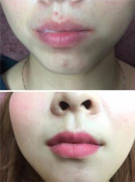 紋唇 前後比較