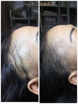 髮際線 髮際線