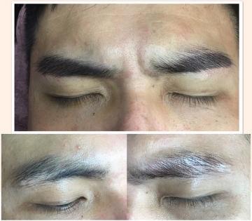 紋繡眉 男士修補疤痕改運